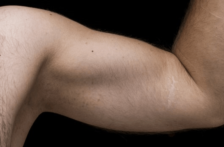 How To Lose Arm Fat: The Secret Nobody's Telling You